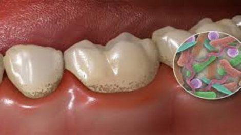 Patógenos orales